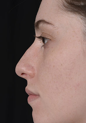 Rhinoplasty before surgery ppc