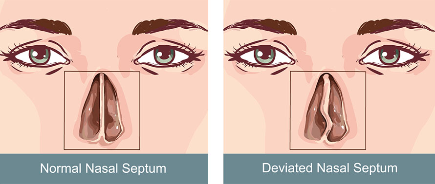 Septoplasty for deviated nasal septum