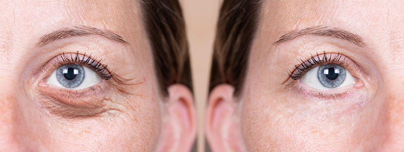 browlift or blepharoplasty