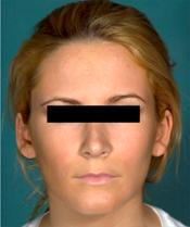rhinoplasty afterA110309