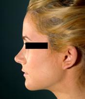 rhinoplasty afterB110309