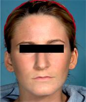 rhinoplasty beforeA110309