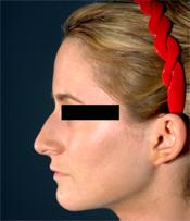 rhinoplasty beforeB110309
