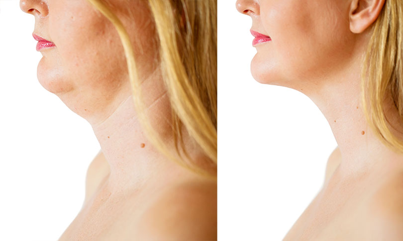 what problems neck lift